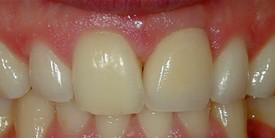 DentalImplant - After