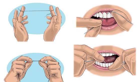 Canadian Dentists Maintain The Effectiveness Of Flossing