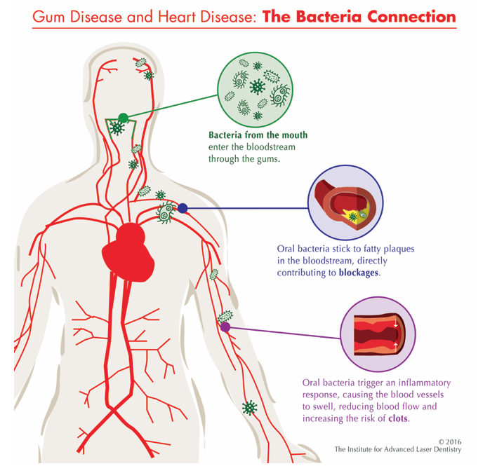 The link between oral health and heart disease
