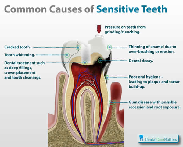 Tooth Hypersensitivity