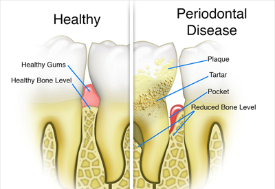 Neesh Dental Explains Bone Loss In Teeth and its causes
