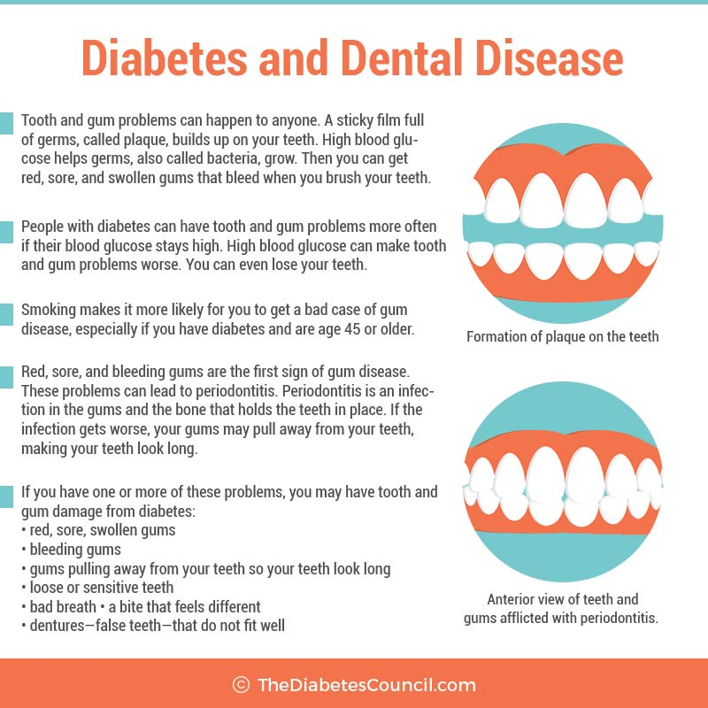 dentist may help identify diabetes