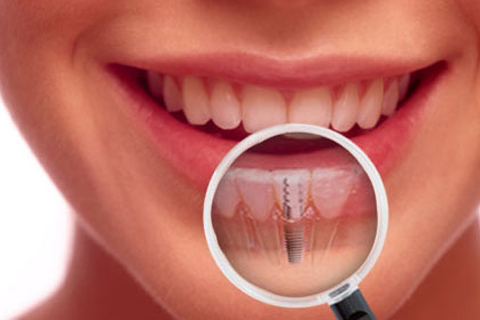 A client smiles as they showcase a dental implant at Neesh Dental in Saskatoon Saskatchewan