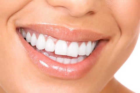 A woman with clean, white teeth smiles at Neesh Dental in Saskatoon Saskatchewan