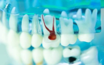 Root Canal Therapy: Relieve Pain & Save Your Smile